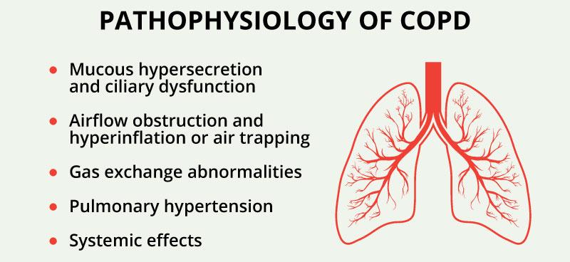 171015_WCD_Pathophysiology5