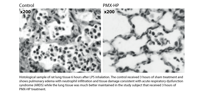200521-Focus-On_COVID-19-and-the-gut-lung-axis_Histological-sample